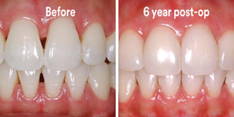 BioClear Diastema Closure and Black Triangle Closure  - Smile View Dental, West Chicago Dentist