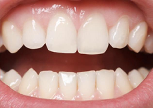 Cosmetic Bonding  - Smile View Dental, West Chicago Dentist