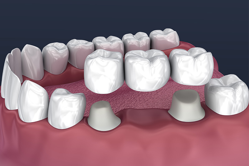 Crowns and Bridges, Inlays and Onlays  - Smile View Dental, West Chicago Dentist