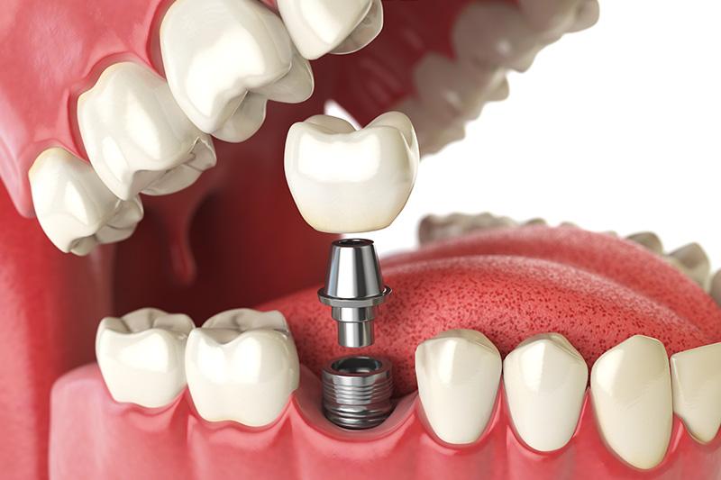 Dental Implants - Smile View Dental, West Chicago Dentist
