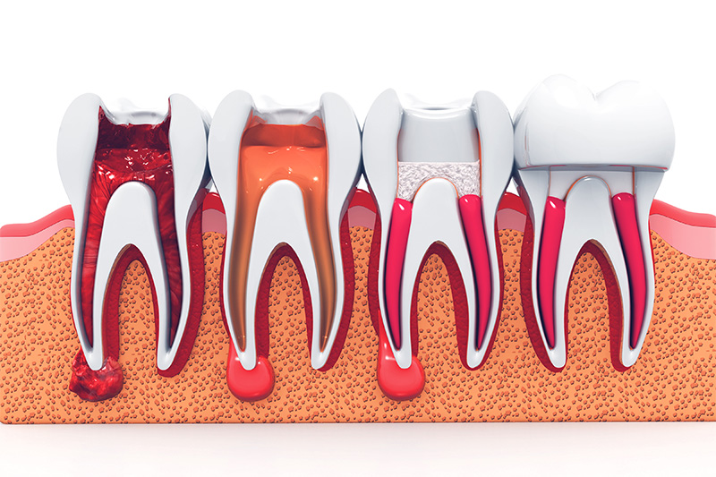 Root Canal Therapy  - Smile View Dental, West Chicago Dentist