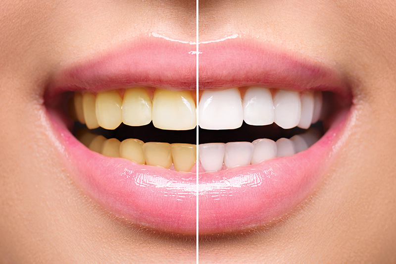 Teeth Whitening - Smile View Dental, West Chicago Dentist
