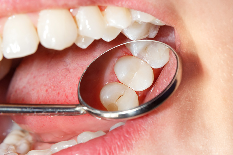 Tooth Colored Composite Fillings  - Smile View Dental, West Chicago Dentist