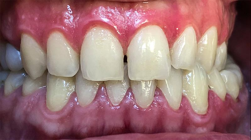 Veneers  - Smile View Dental, West Chicago Dentist