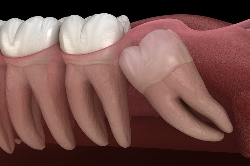 Wisdom Teeth Extractions (with Sedation)  - Smile View Dental, West Chicago Dentist